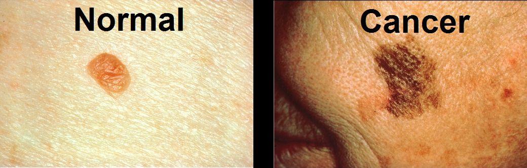 Cancerous moles vs normal moles