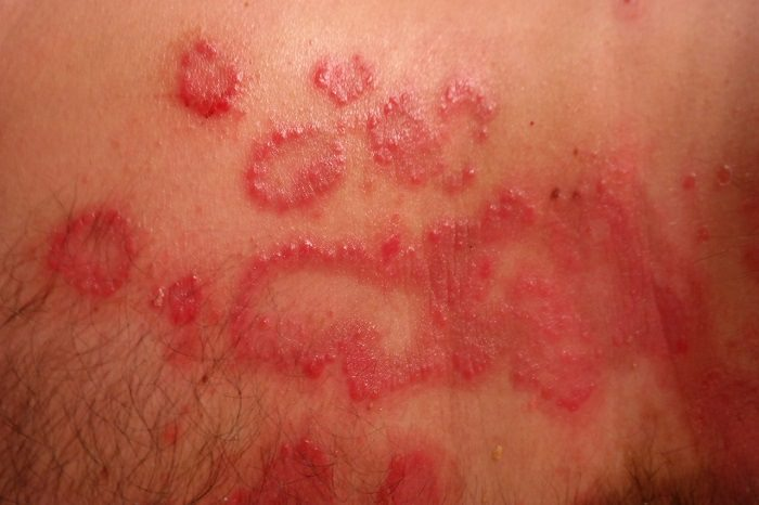 Elbow, scalp and knee area skin is usually affected with psoriasis 2