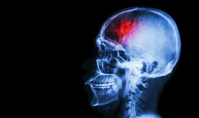 stroke early signs