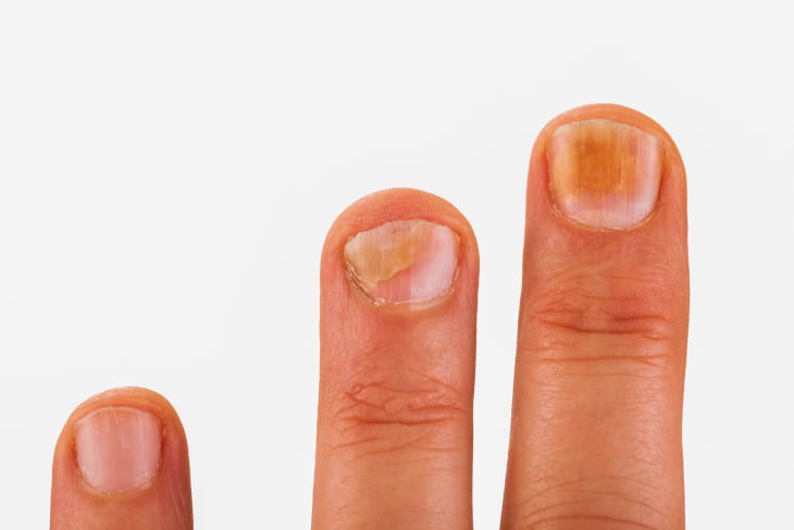 Health Problems Fingernails