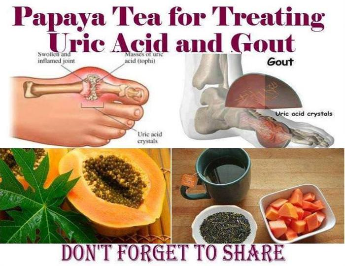 what is the diet for gout patient causes of gout in the toes