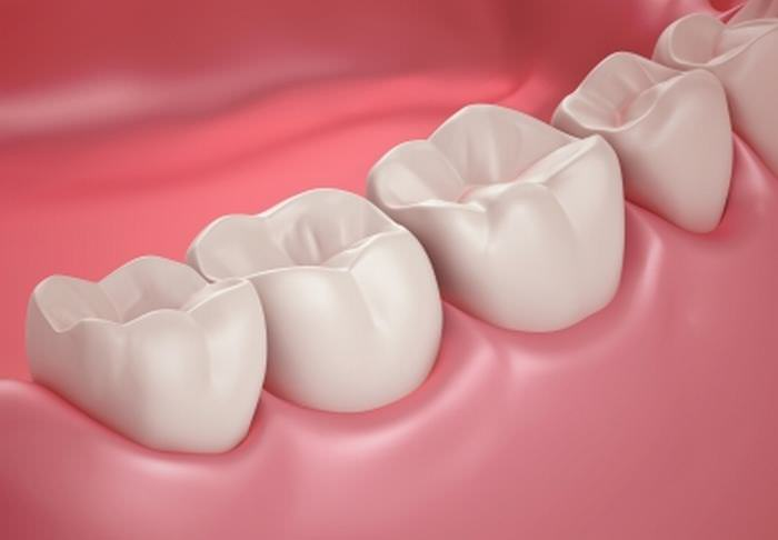 Got Dental Plaque? These are the Natural Ways of Treating it