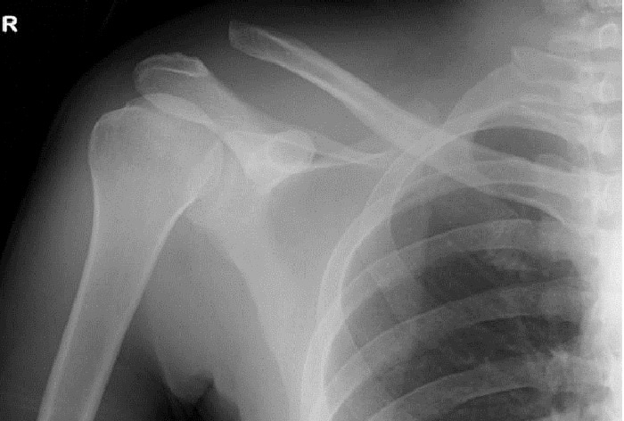 Shoulder Injuries