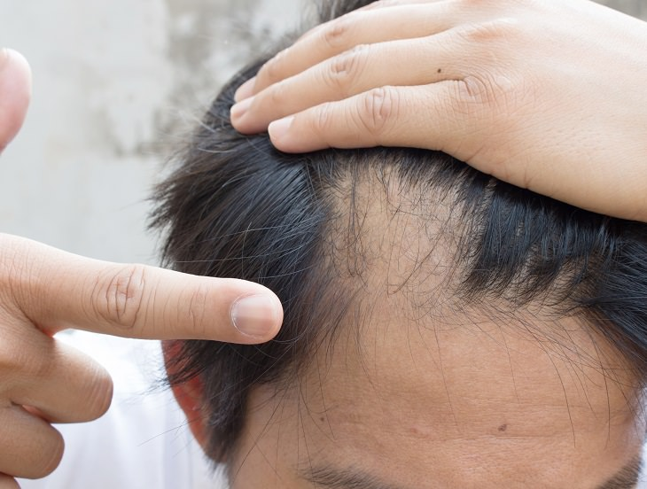Alopecia Areata - Informative - Helpful