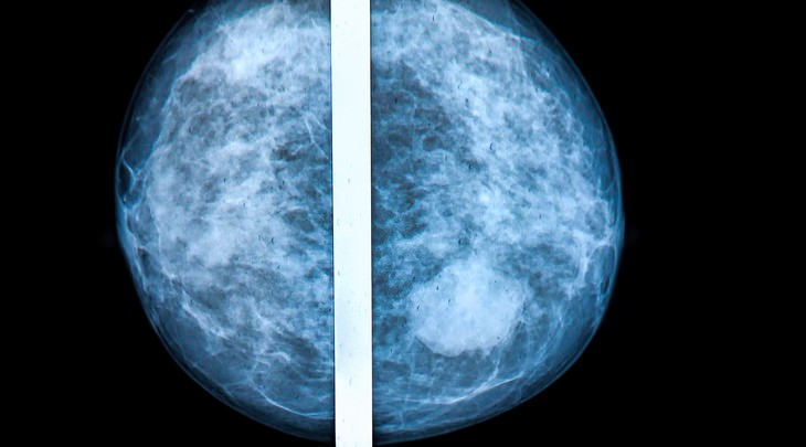 breast cancer, not cancer, check-up