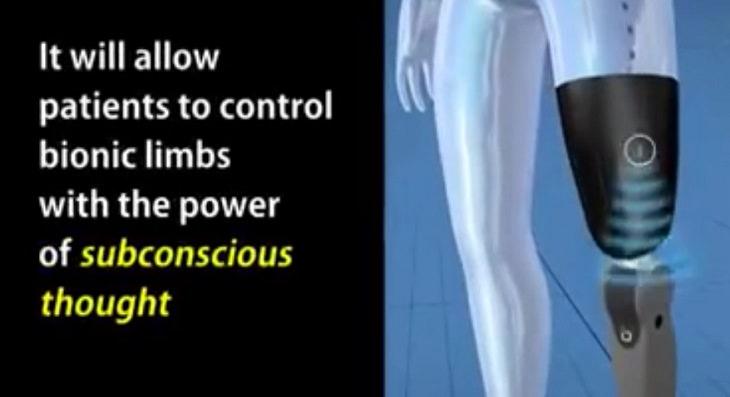 bionic spine