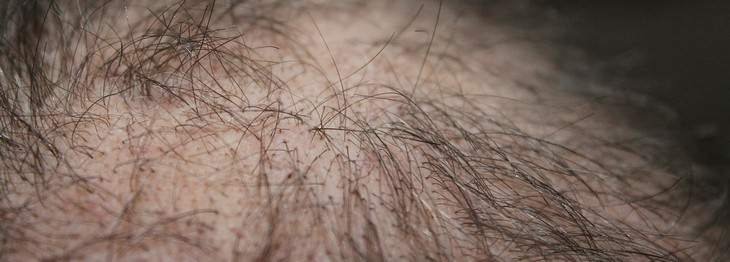 rosemary, hair loss, hair problems