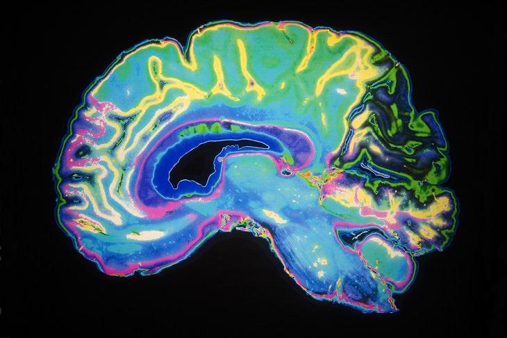Alzheimer's FAQ