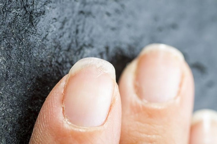 If Nails Appear Brittle And Are Combined With Cold Hands Feet It May Indicate Anemia This Medical Condition Is Also Seen Symptoms Like Dizziness