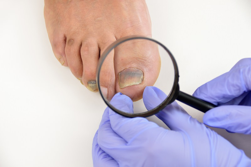 Diagnose Health Issues by Looking at Your Nails | Health - BabaMail