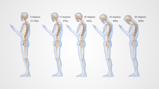 phone spinal injury - skeletons tilting their head at different angles