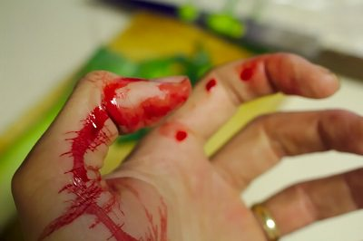 blood on hand