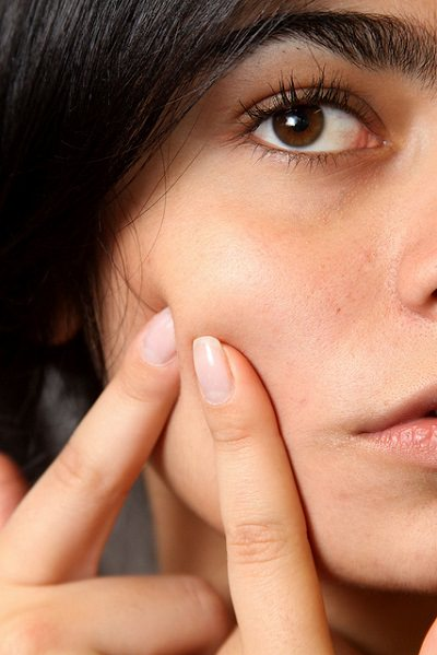 7 types of bumps and blemishes: dark skinned woman popping a pimple