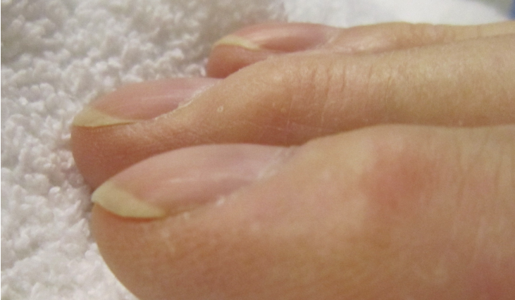 curved fingernails health warning