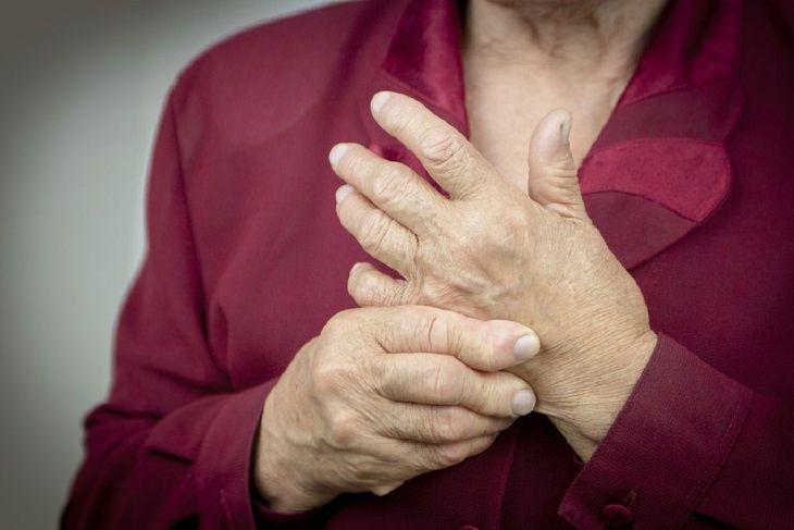 aerobics help arthritis, photo of hands with arthritis