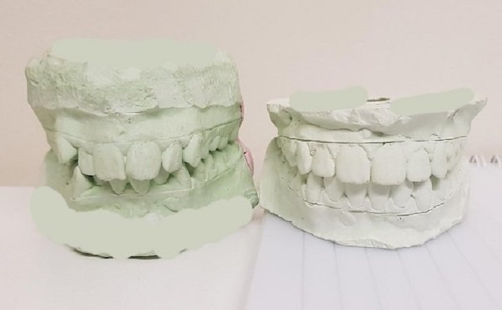 difference in comparison of random things, two plasters of the same teeth showing before and after braces