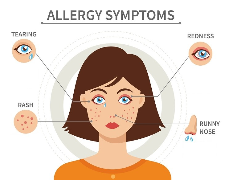 silent signs of allergies common symptoms