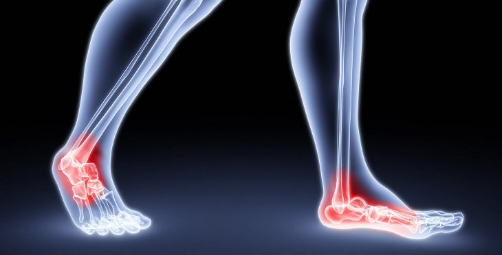 natural treatments for sprained ankles ankle bones