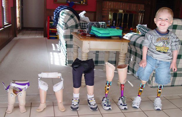child with artificial legs