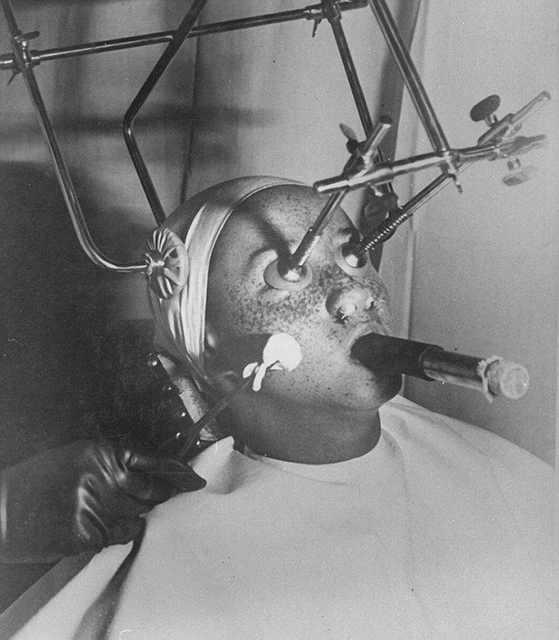 old beauty treatments