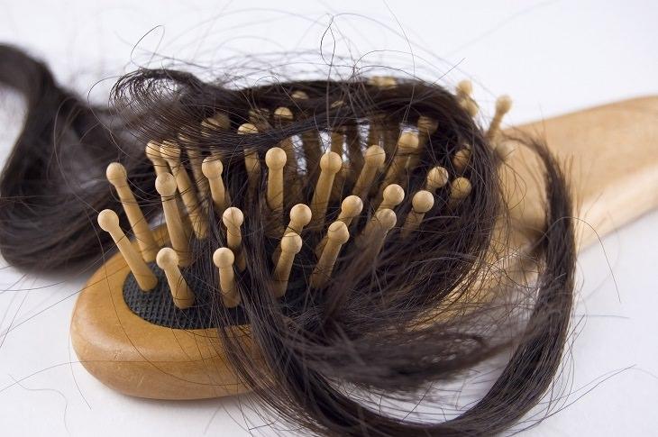 Alopecia Areata - Informative - Helpful