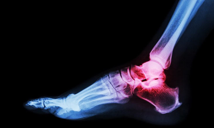 how to prevent gout