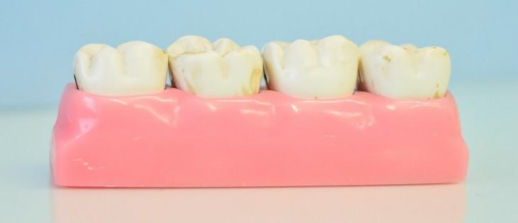 plaque, dental care, natural