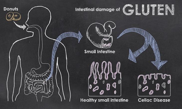Cope - Celiac Disease