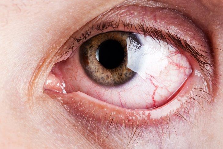 Herpes en el ojo como curar naturalmente