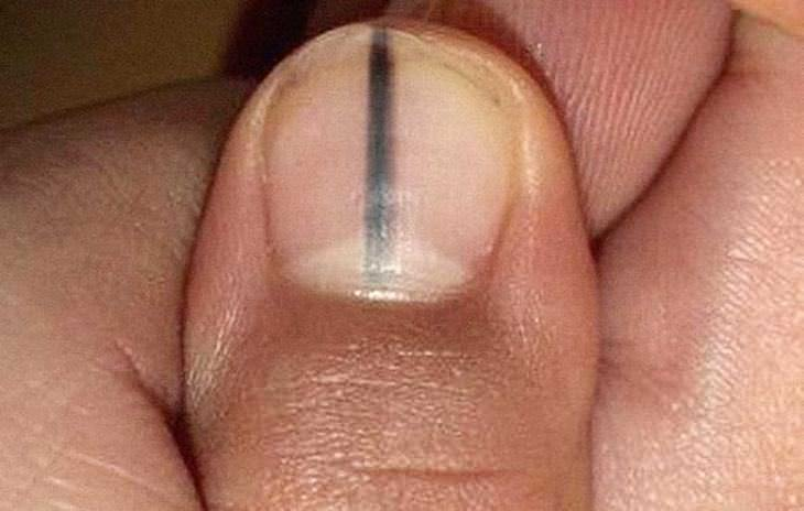 black line on nail