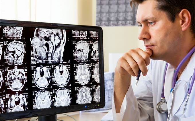 doctor analyzing head scans