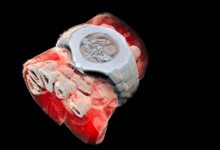 MARS scanner X-rays