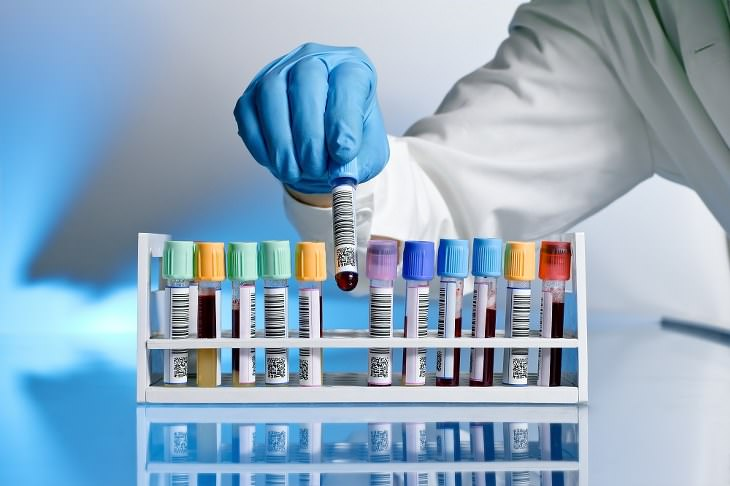 Medical Tests