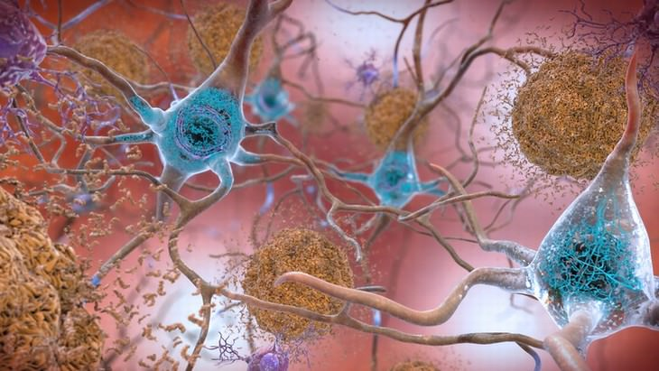 Alzheimer's and Gingivitis study amyloid plaques and tangles