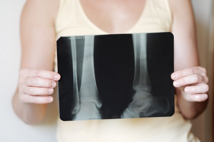 10 Greatest Medical Discoveries of the Year 2019 woman holding xray of legs