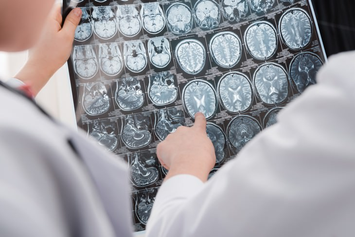 depression myths doctor pointing at brain scan