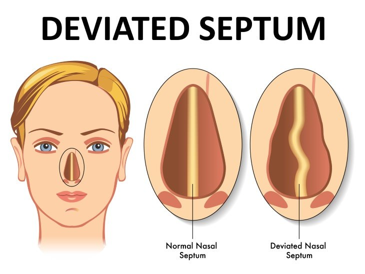 Chronic Sinusitis Causes deviated septum