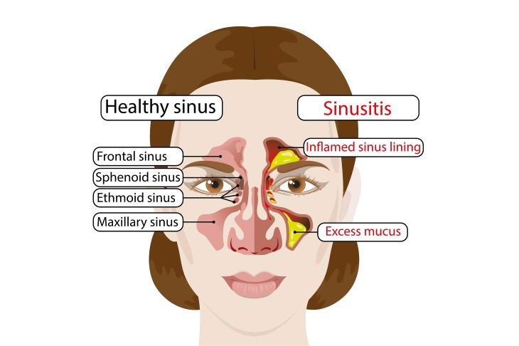 Chronic Sinusitis Causes