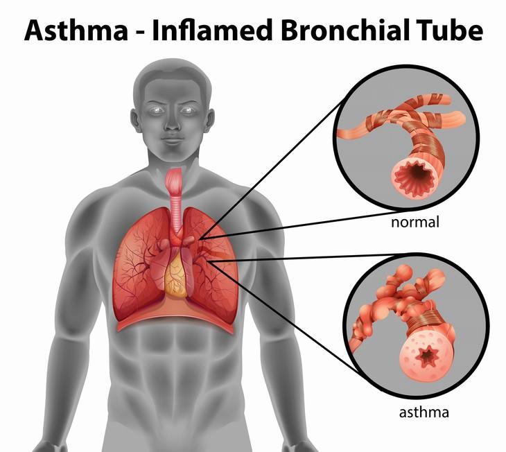 Chronic Sinusitis Causes