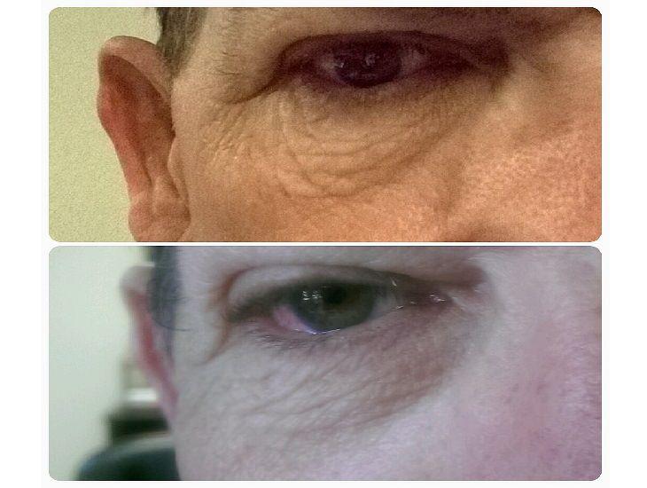 Facial Yoga: anti aging