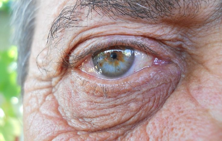 Facial Yoga: bags under eyes