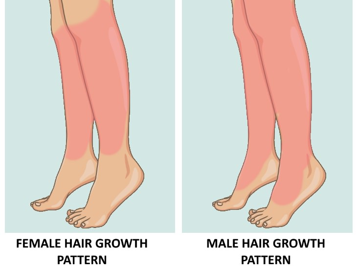 excess hair growth in women leg hair
