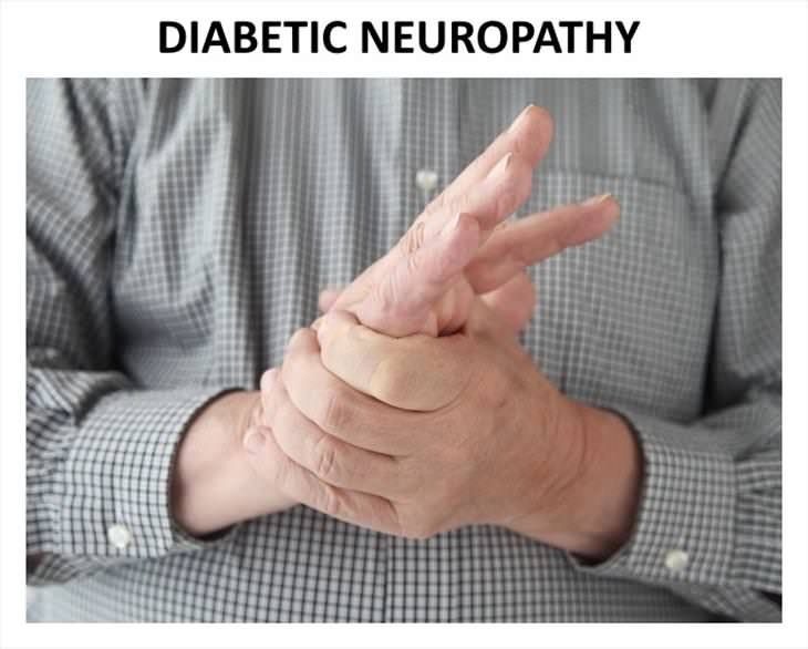 Causes Of Hand Numbness Diabetic Neuropathy