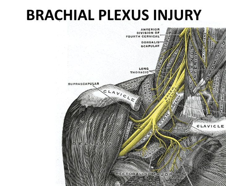 Causes Of Hand Numbness Brachial Plexus Injury