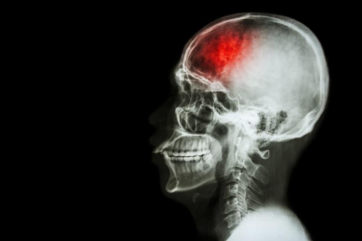 Stroke: stroke