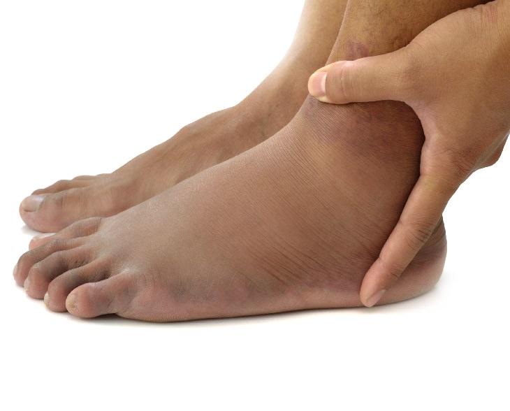 nocturia UTIs Swelling of the Legs (Edema)