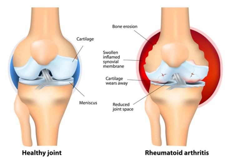 baking soda arthritis diagram
