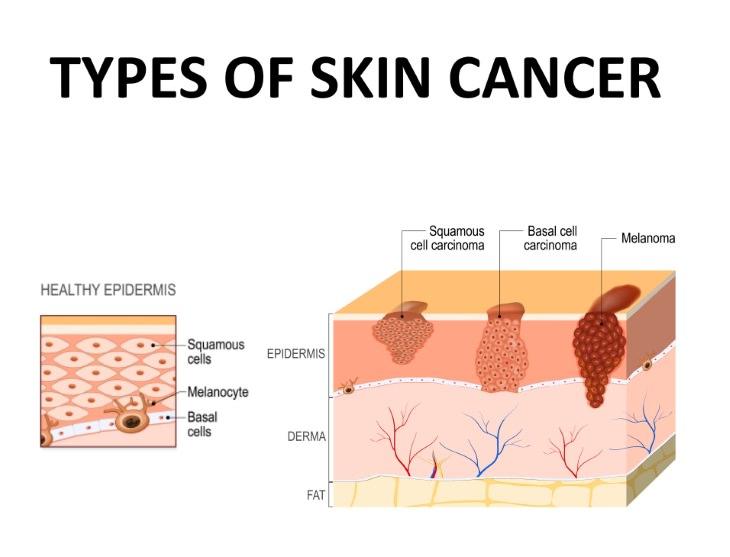sun exposure myths skin cancer