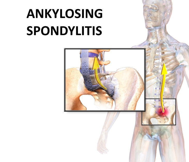 Ankylosing spondylitis  Signs and Symptoms Of Ankylosing Spondylitis?