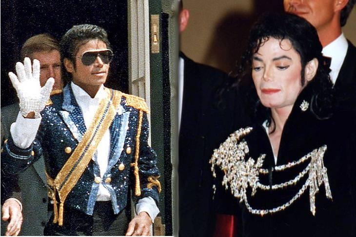 Vitiligo: Michael Jackson